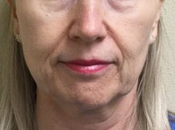 Before Juvederm Ultra Plus By   Michelle Brown