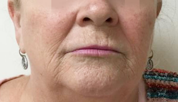 Before Juvederm (Lips) and Volbella (Perioral) By   Maria Mosos