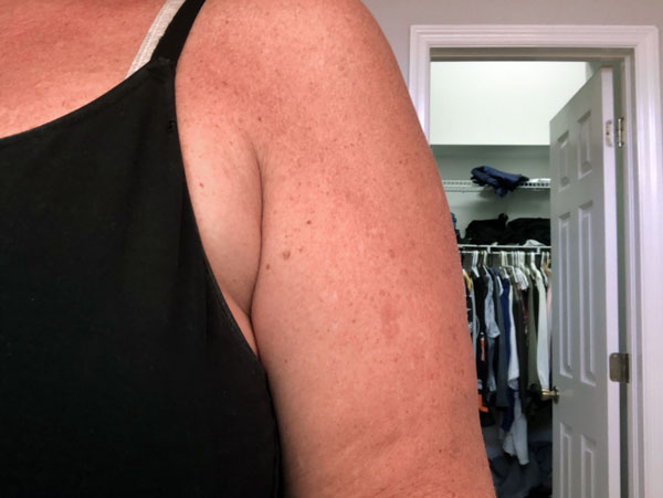 After Kybella By   Michelle Brown