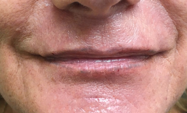 After Volbella (Lips) By   Michelle Brown