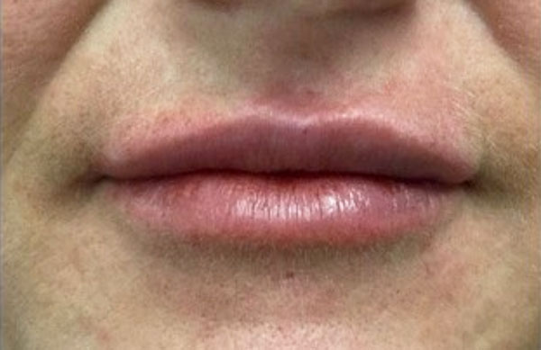 After Volbella (Lips) By   Heather Scull