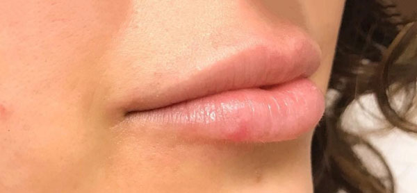 Before Restylane (Lips) By   Heather Scull
