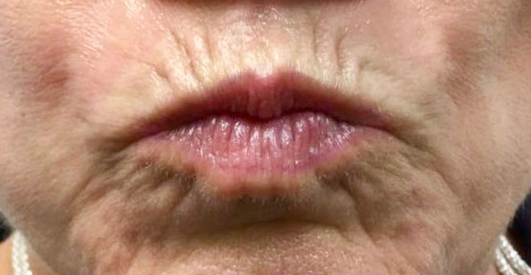 Before Volbella (Perioral & Lips) By   Heather Scull