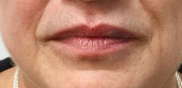 After Volbella (Perioral & Lips) By   Heather Scull