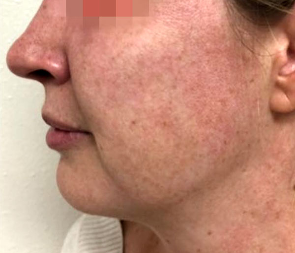 Before 1 IPL Photofacial Treatment By   Heather Scull