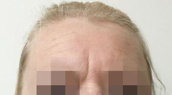 BEFORE (Botox)