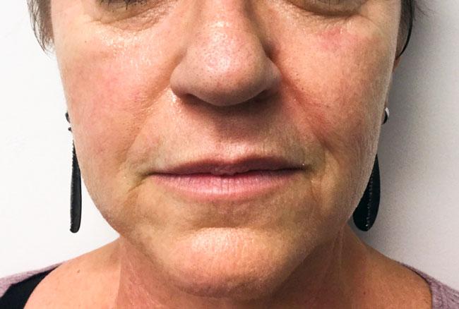 Before Voluma (Nasolabial Folds) By   Katherine Rehberg