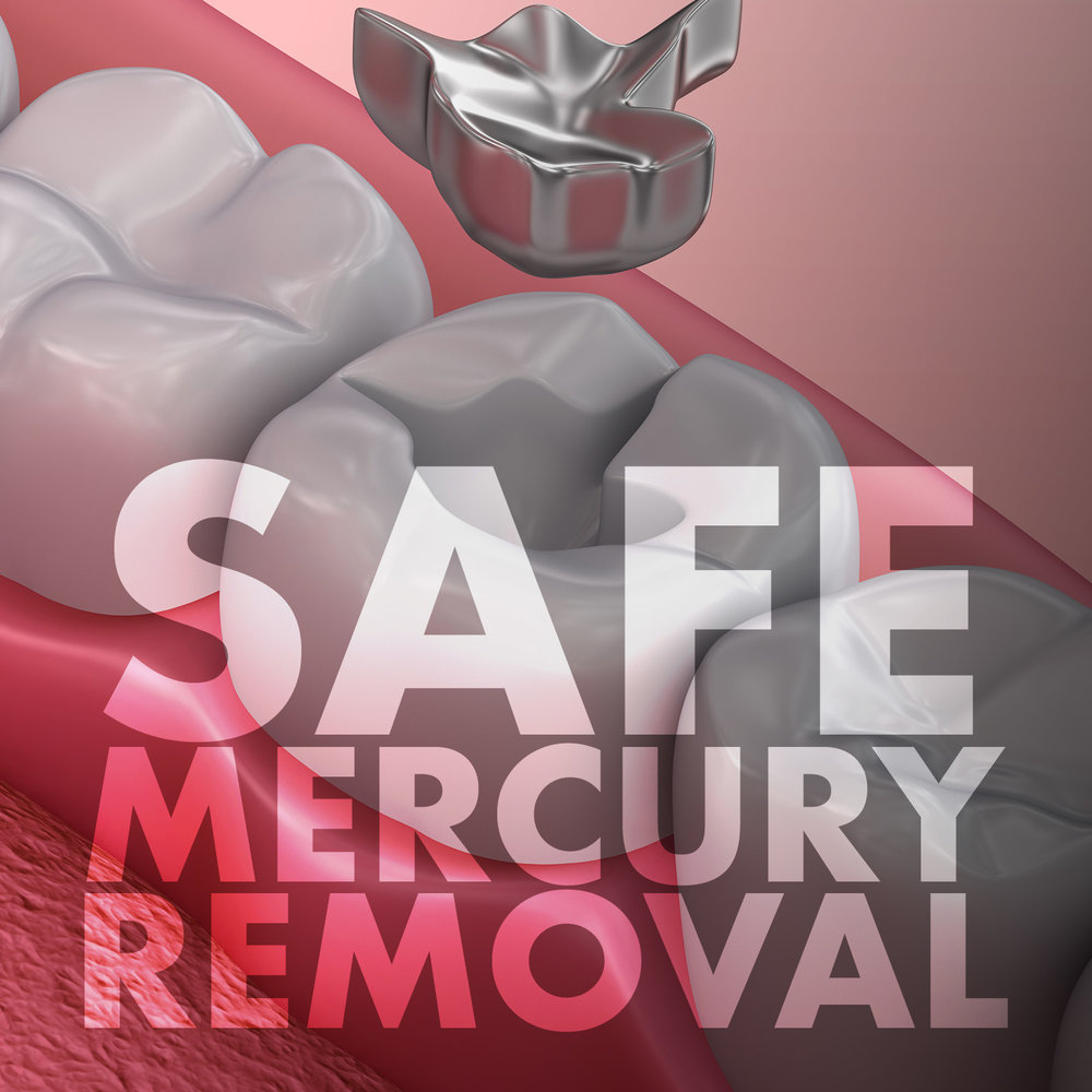 mercury-removal.jpg