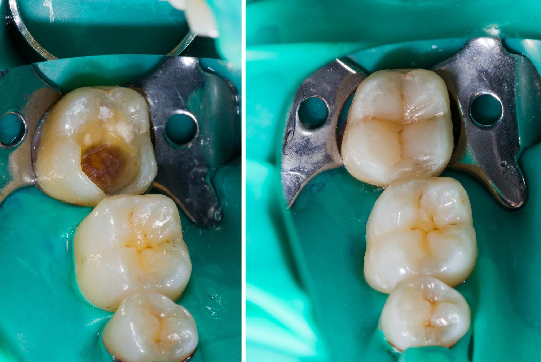 I Ve Lost A Filling Is This Urgent Dr Michael Krochak D M D Dental Blog