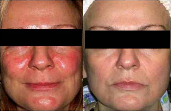 skin-rejuvenation1.jpg