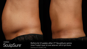SculpSureBA_SidebySide_Male1.jpg