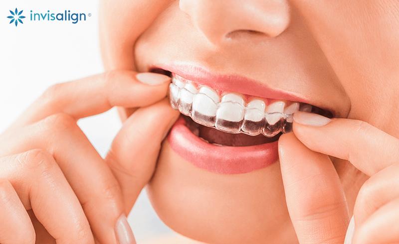 Invisalign - De genomskinliga skenorna som behandlingen består av är näst intill osynliga vilket gör att det knappt syns att du har tandställning. Dessutom kan du under korta stunder ta ut tandställningen. Flexibiliteten med Invisalign gör att ditt vardagsliv inte påverkas.