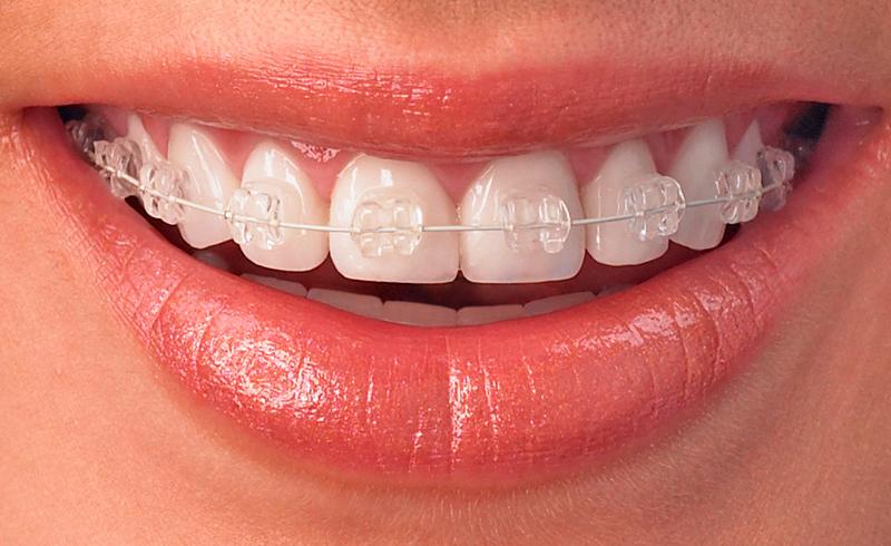 Klassiska rälsen - Rälsen är en klassisk tandställning och en välbeprövad metod för tandreglering som ger hållbart resultat. Vi erbjuder även tandfärgade brackets till den klassiska rälsen, vilket gör att den syns mindre och blir mer estetiskt. Tandställningen sitter fast och kan inte tas ut.