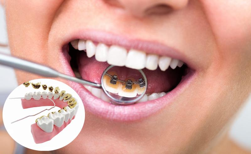 Incognito & WIN - Ett alternativ är tandställningar som fästs på tandradens insida, exempelvis Incognito eller WIN. Den här behandlingen syns inte eftersom fästena sitter på tändernas insida. Tandställningen sitter fast och kan inte tas ut.
