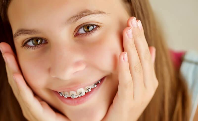 Klassiska rälsen - Rälsen är en klassisk tandställning och en välbeprövad metod för tandreglering som ger hållbart resultat. Det är den klassiska rälsen som omfattas av betalningsgaranti. Vi erbjuder även tandfärgade brackets till den klassiska rälsen, vilket gör att den syns mindre och blir mer estetiskt.
