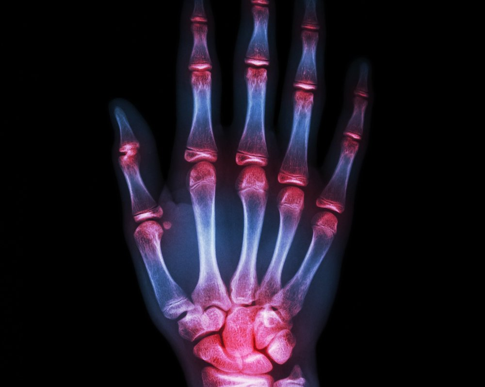 Hand & pols -