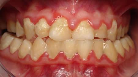 gum-disease1.jpg