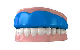 mouthguard2.jpg