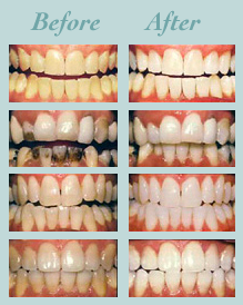 Whitening patients of Dr. Doroodian.