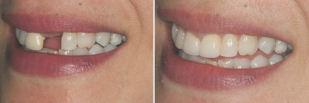 Before and After: Implant