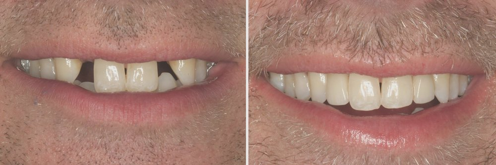 Before and After: Veneers