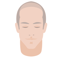 Hairline.png