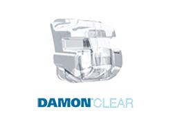 braces_damon_clear.jpg