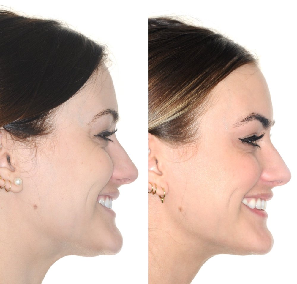 Before & After: In these images, you can notice that the patient's smile is much larger, her lips are fuller, and her jawline is more pronounced.