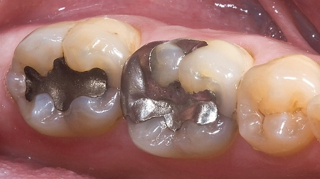 Amalgam is not stable after it is implanted into teeth. It constantly releases mercury vapor into your body. And this mercury bioaccumulates. photo: evolvedental.com.au