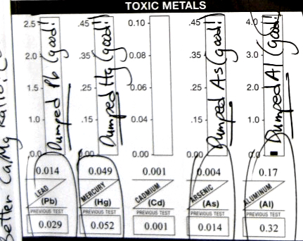 A section of my hair test for toxic metals from ARL Labs.