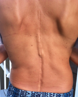 30 year old scar from spinal fusion surgery for scoliosis. You can see the steel rod jutting out in the middle.