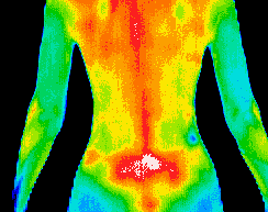 Thermography and Inflammation Photo credit:  innatewellnessaz.com