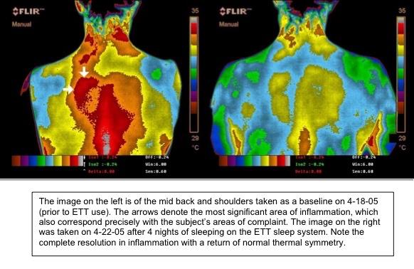 earthing-inflammation1.jpg