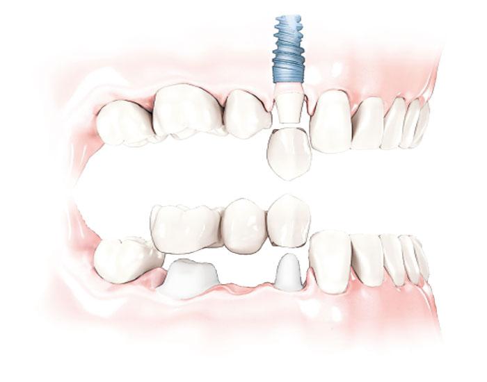 treatments-implants.jpg