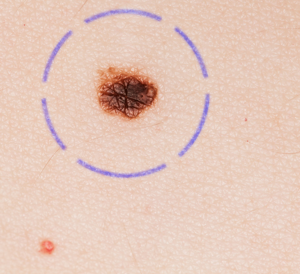 Accurate and Effective Care - In terms of safety and peace of mind, the advantages of computer-based skin cancer screening are obvious. Regular check-ups allow us to maintain an overview of your existing and new moles.Minute changes in moles are immediately evident and be diagnosed early on, leading to positive outcomes that can be life saving.