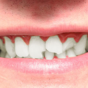 chipped-tooth-square-300x300.jpg