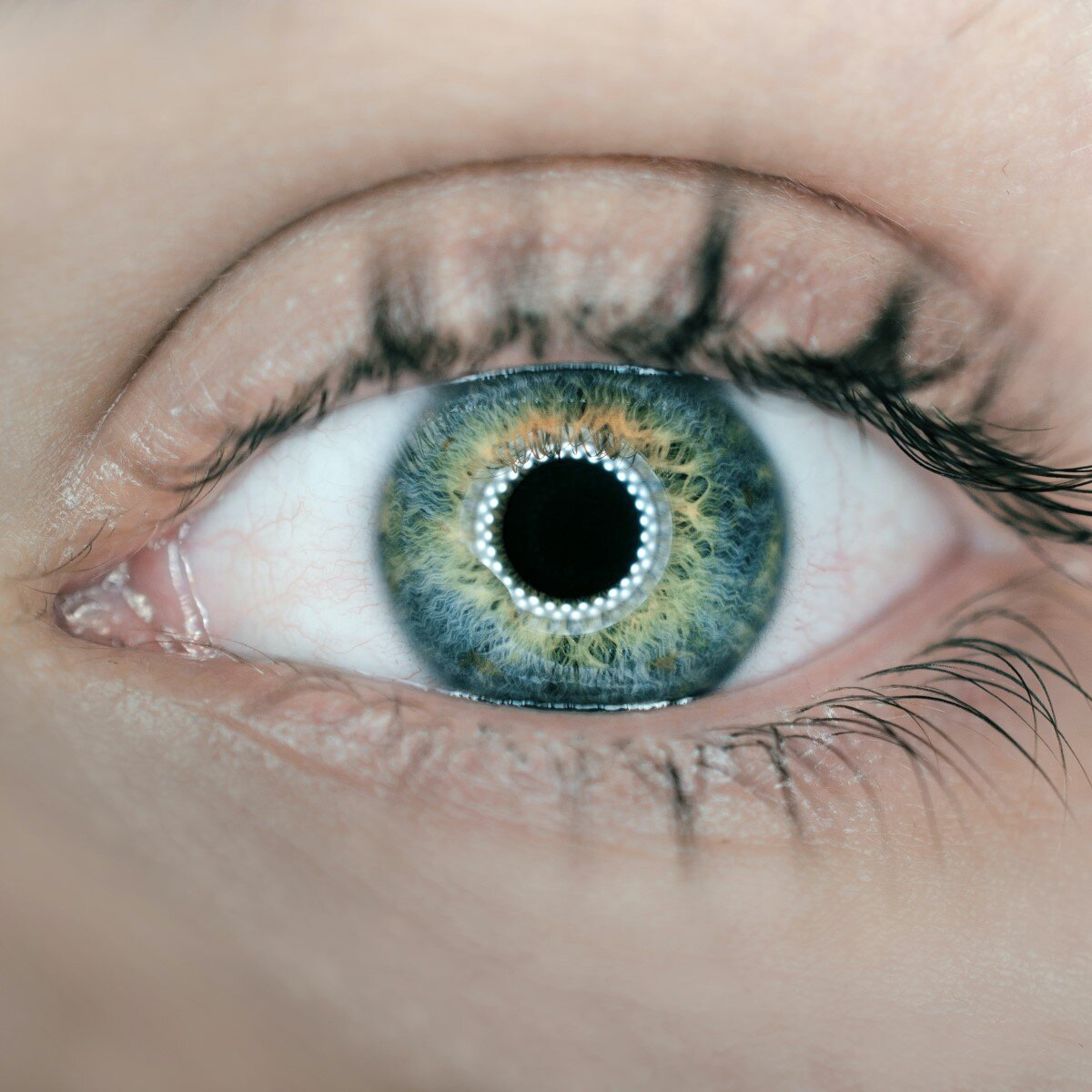 S3.14 The eyes have it: From genetics to gene therapy