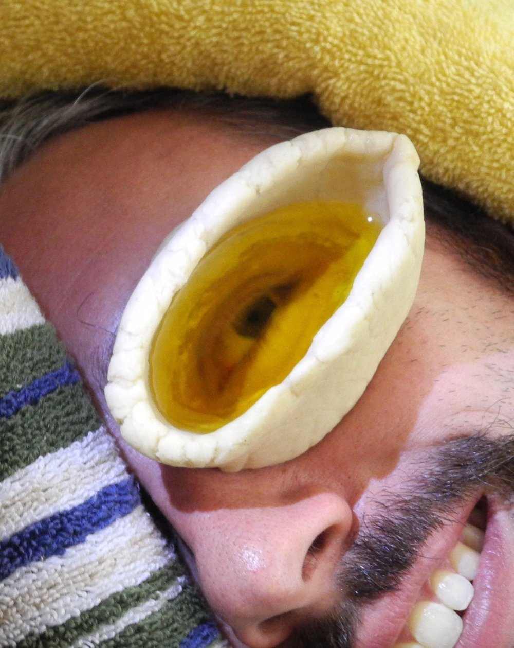 Eye Basti is used to reduce eye strain and stress. The eyes are bathed a warm medicated ghee