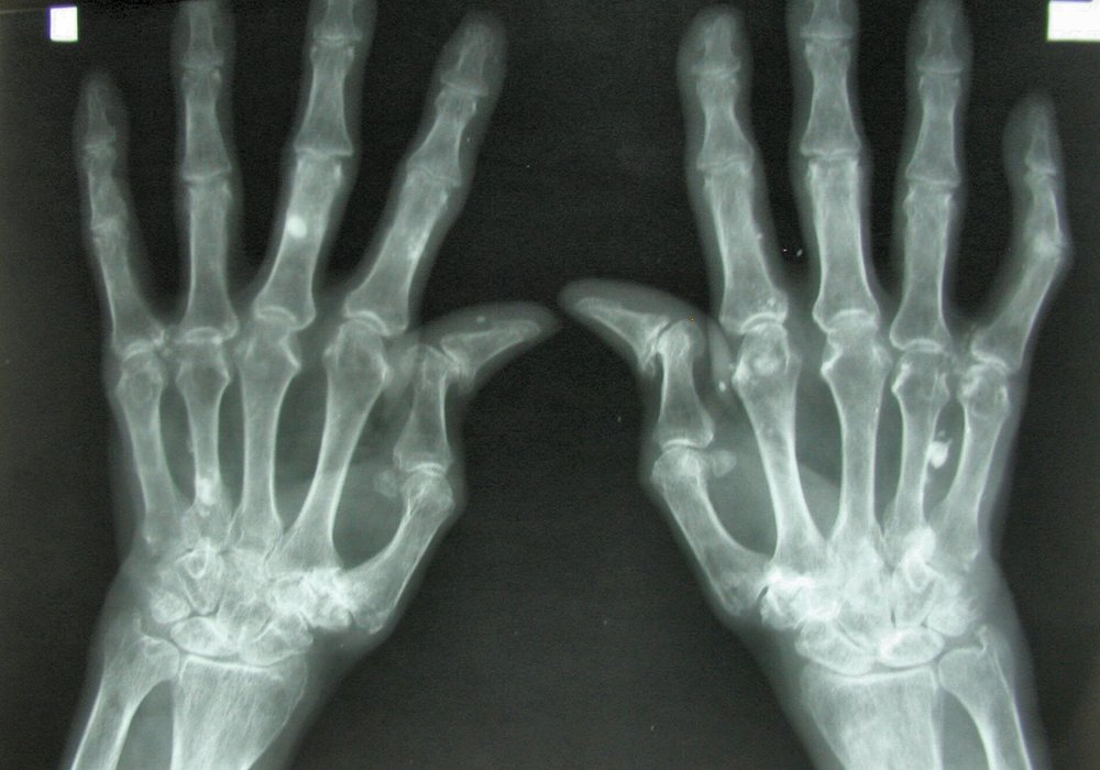 December-Rheumatology.jpg