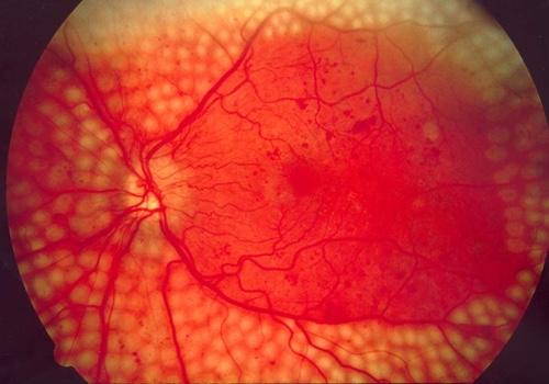 September+2017+diabetic-retinopathy.jpg