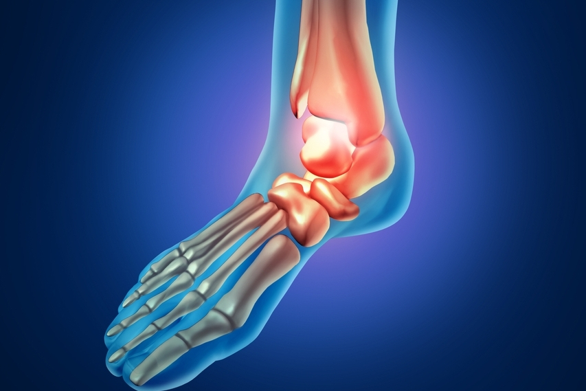 foot fracture or broken ankle treatment by amarillo, tx foot doctor