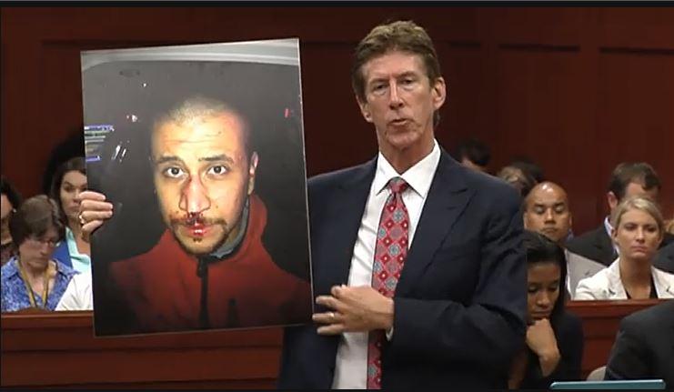 OMara-photo-Zimmerman-bloody-nose-7-10-2013-copy.jpg