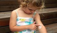 children eczema
