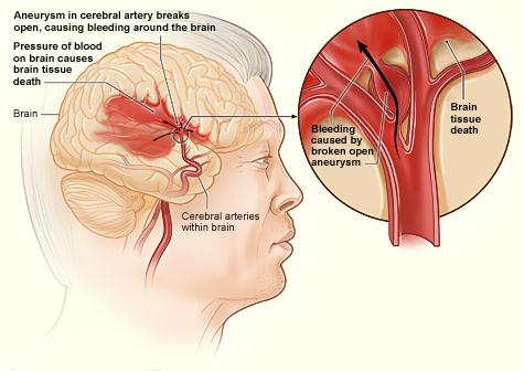 Hemorrhagic-Strokes-