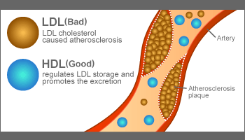 ldl and hdl difference