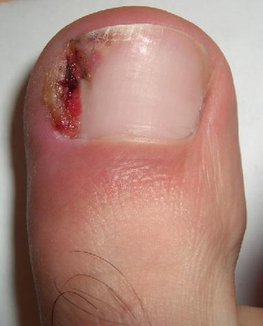 A very common picture of a very unhappy toenail.