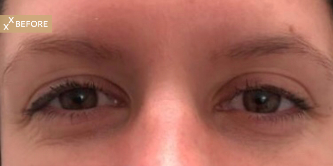 EyelashOut_1Before.jpg
