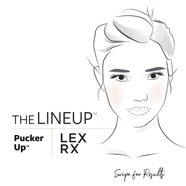 LexRx Pucker Up™️ ➖ swipe for results. . #lipinjections #lipfillers #puckerup #boston #beaconhill #southie #seaportboston #botox #injectables #nursepractitioner #bestofboston