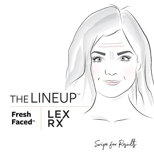 LexRx Fresh Faced™️ ➖ swipe for results. . #boston #beaconhill #southie #seaportboston #botox #lipinjections #lipfillers #skincare #injectables #nursepractitioner #bestofboston