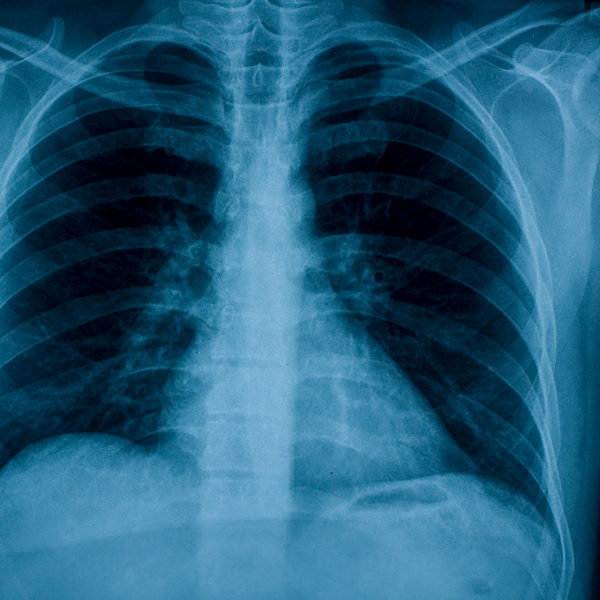 X-Ray - This common exam is used to study organs and bones to diagnose fractures, arthritis and blood vessel blockage